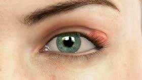 Chalazion Bump On Eyelid