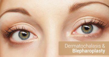 Dermatochalasis & Blepharoplasty