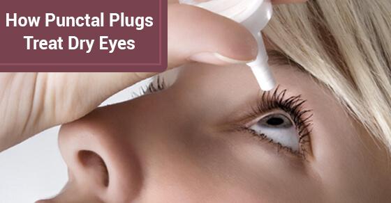 How Punctal Plugs Treat Dry Eyes
