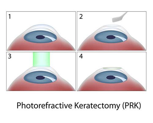Chart Illustrating the PRK Procedure