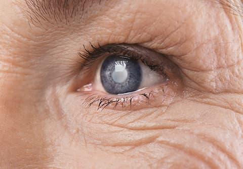 Closeup of a Cataract in a Woman's Eye